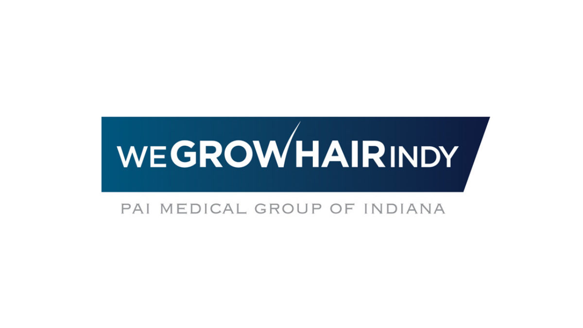 Hair Transplant FAQs - WeGrowHairIndy