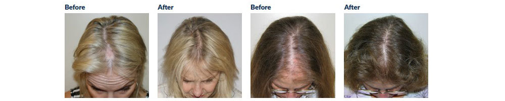Female Hair Loss Before and After