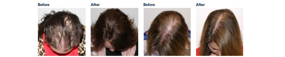 Female Pattern Baldness Before and After
